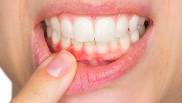 Gum Therapy in St  George | Plumb Dental